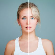 Challenges of Acne and Rosacea Treatment