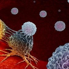 Bladder Cancer Diagnosis and Surgery