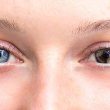 Is Changing Your Eye Color Dangerous?