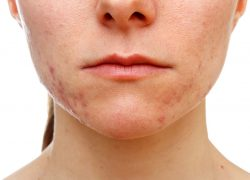 New Hope for Acne? HT-003 Treatment